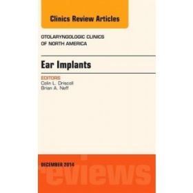 Ear Implants, An Issue of Otolaryngologi