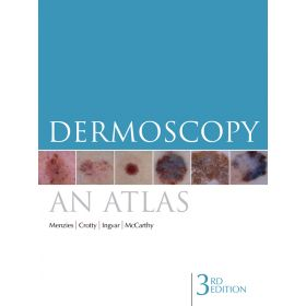 Dermoscopy an atlas Menzies