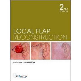 Local Flap Reconstruction: A Practical Approach